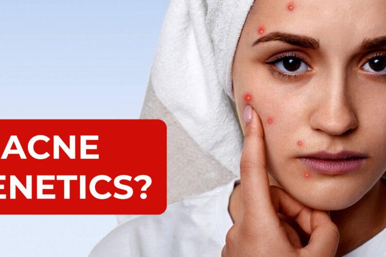 Is Acne Genetics?